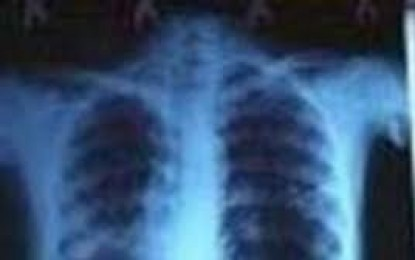 گلگت بلتستان میں ٹی بی کے 2500 سے زائد مریض موجود ہیں، ذرائع محمکہ صحت