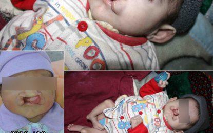 ہنزہ سے تعلق رکھنے والی سات ماہ کی بچی علاج کے لئے مدد کی منتظر