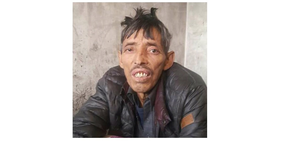 شگر کا رہائشی  قربان علی گردوں کے عارضے میں مبتلا، علاج کے لئے ساری جمع پونجی لگ گئی، مخیر افراد سے تعاون کی اپیل